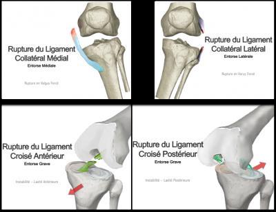 Rupture ligaments croisées, rupture ligaments collatéraux