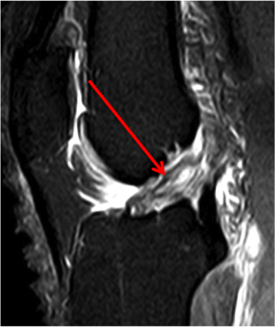 Rupture du LCA: aspect IRM