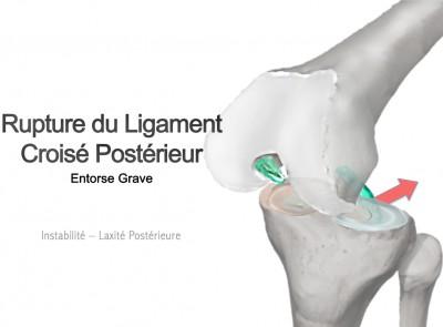 Entorse du Ligament croisé postérieur