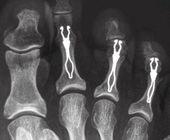 chirurgie orteil en griffe