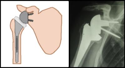 Prothèse Totale inversée
