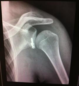 Radiographie post-opératoire butée en place.