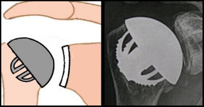 Prothèse totale de type stemless.