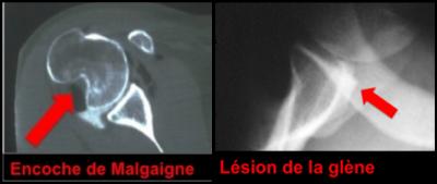 Lésions osseuses humérale et glénoïdienne