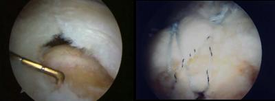 Rupture tendineuse: aspect arthroscopique avant et après réparattion.
