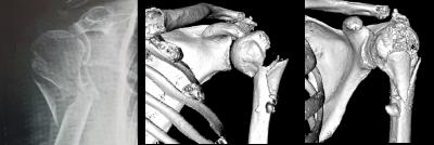 Fracture d'épaule: aspect radiographique et scanner