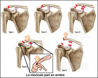 Classification des luxation acromio-claviculaire (Rockwood)