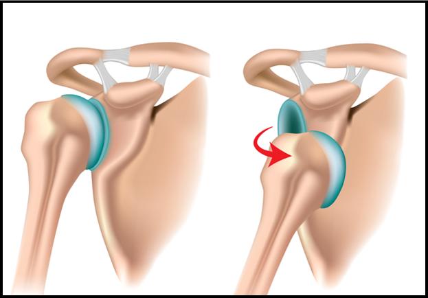 Intervention de Latarjet ou butée osseuse coracoïdienne - Clinique ...