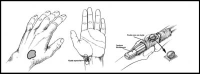 Kyste arthrosynovial