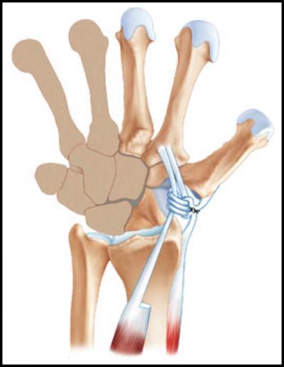 Rizarthrose: Ligamentoplastie au FCR