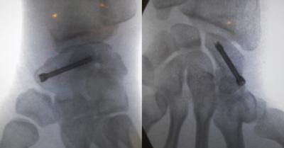 Vissage d'une fracture du scaphoïde