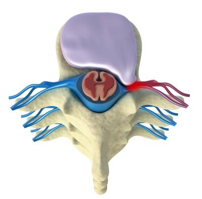 Compression d'une racine  par une hernie discale